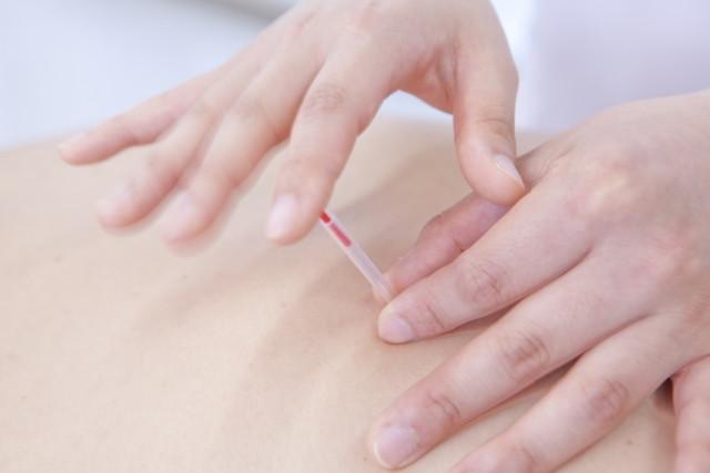 鍼灸施術で身体の内側から不調を改善