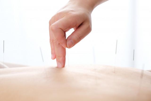 鍼灸施術で血行改善を促し自然回復力を引き出します