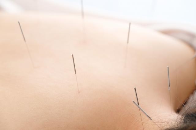 鍼灸治療で身体全体の健康を改善します