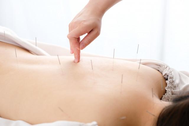 鍼灸施術で身体全体のバランスを向上させます