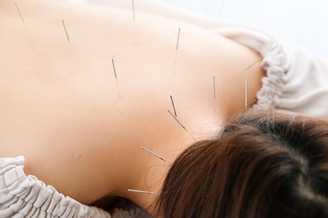 鍼灸施術で自律神経を整えて体質の根本から改善します