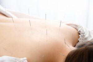 鍼灸施術で冷えの深部から改善して血流を向上させます